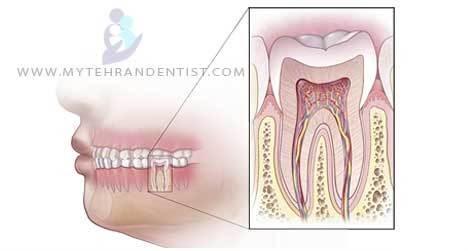 چه چیزی باعث درد عصب دندان میشود ؟
