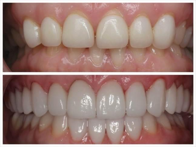 افزایش طول دندانها