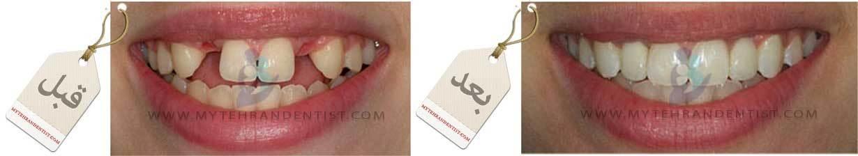 پل و بریج دندانی