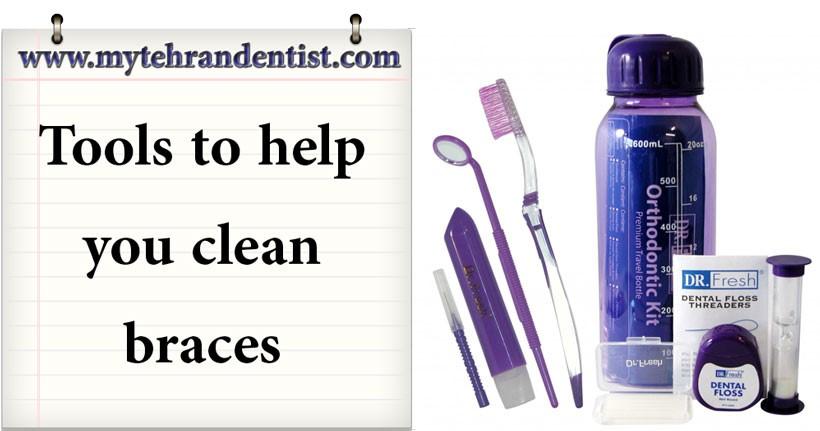 Orthodontic floss