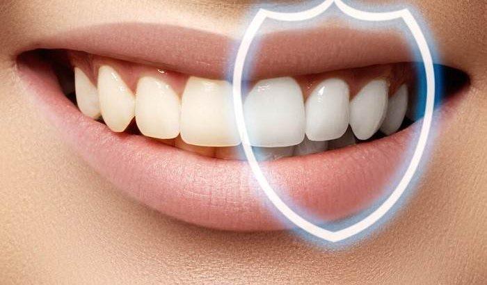 Dental bonding versus dental veneers which one is better