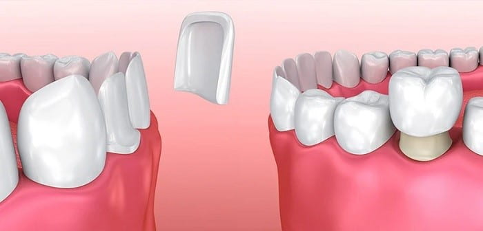 Dental crowns versus dental veneers and laminates