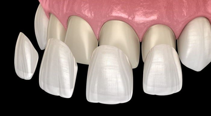 Thin no shaving dental veneer